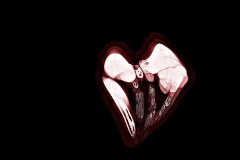 heartanatomyclearvibrantlq